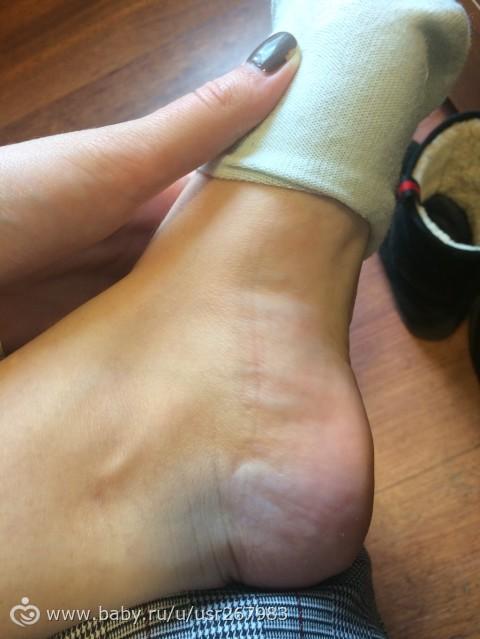30 недель беременности отекают ноги