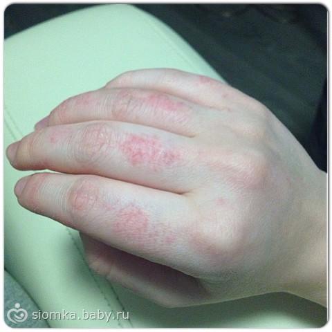 Что делать если кожа на руках обветрилась