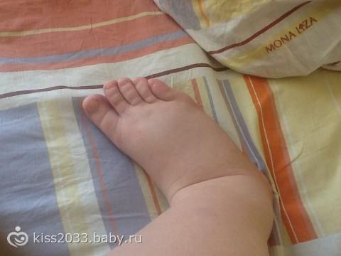 Отечность на 40 недели беременности