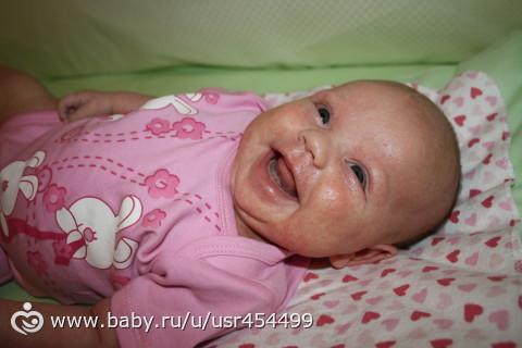 Питание ребенка в 7 месяцев при атопическом дерматите