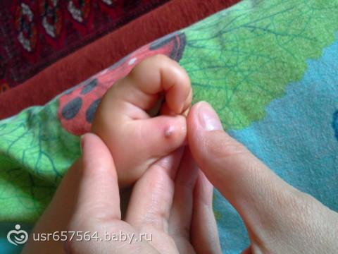 У ребенка загноилась заноза