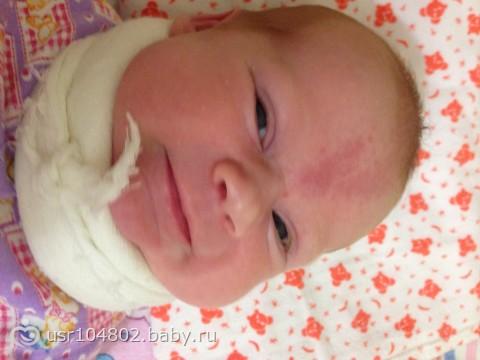 родимое пятно у новорожденного причины возникновения