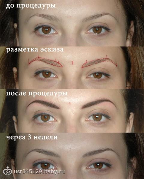 Этапы заживления после татуажа или перманентного макияжа