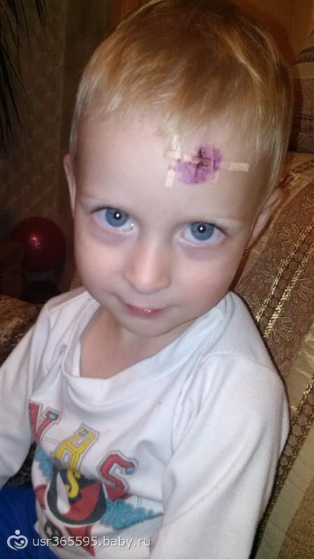 Шрамы, рубцы у ребенка Медицинская консультация 93
