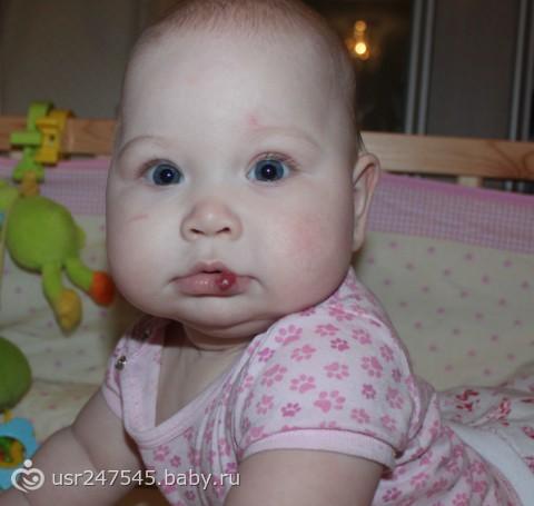гемангиома у ребенка на губе фото