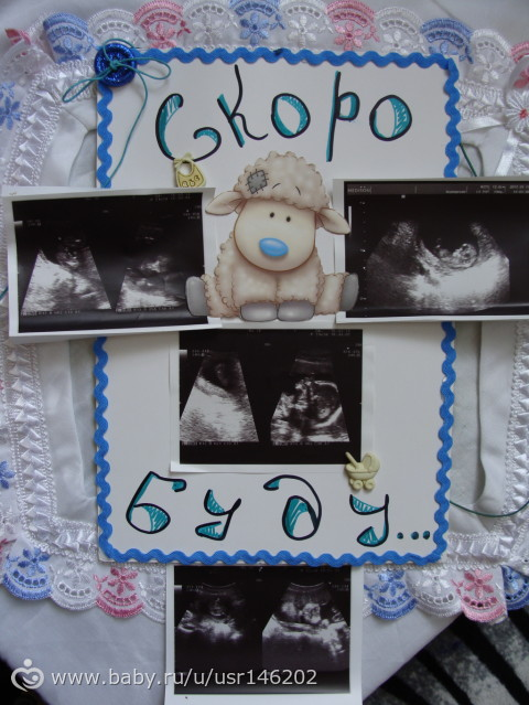 33 недели(разное)с фото