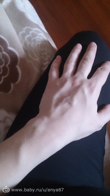 Варикоз внутренних вен нижних конечностей лечение