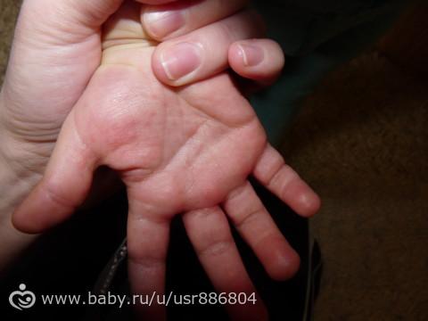Пупырышки на ладошках у ребенка